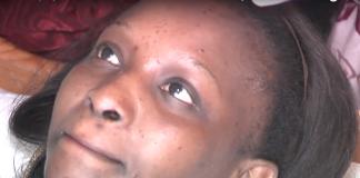 Santé : voici comment se débarasser des boutons sur le visage